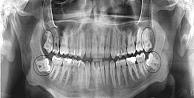 Darıcaya çene tomografi cihazı kuruldu