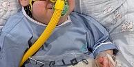 SMA TİP 1 Hastası Hamza , İlacına Kavuştu