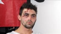 Hollanda polisinin köpek saldırısında yaralanan Türk vatandaşı yaşadıklarını anlattı